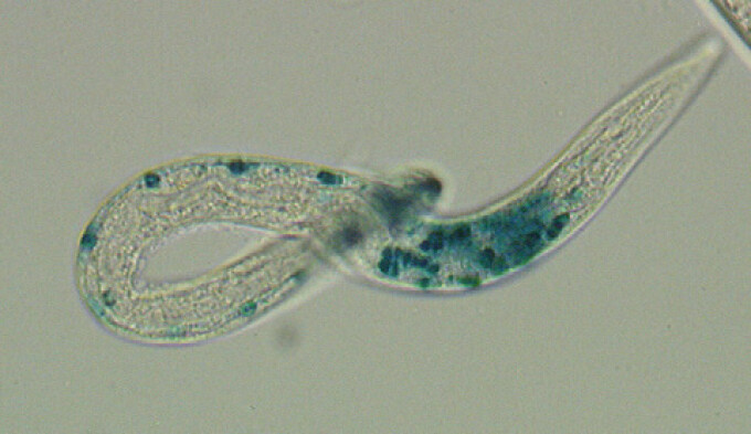 cheloo wife papilloma in vescica