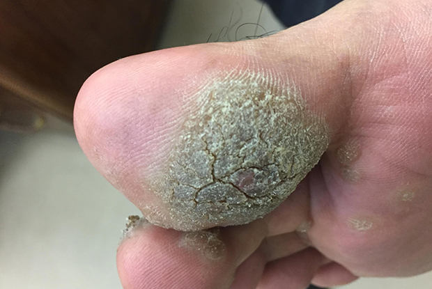 Warts on hands not itchy. Dry and itchy skin