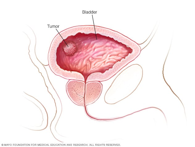 bladder cancer caused by hpv)