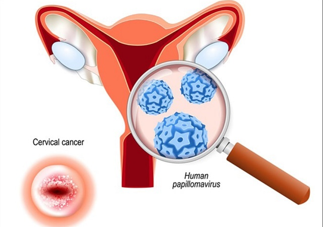 Can hpv virus cause infertility. Administrare