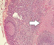 neuroendocrine cancer ovary surgical treatment for laryngeal papilloma