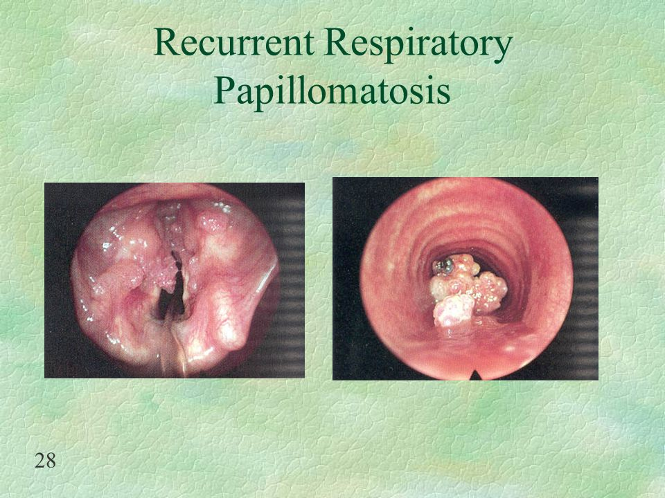 Recurrent respiratory papillomatosis infants, Treatment of papilloma in breast