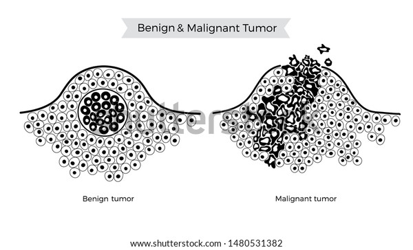 cancer malign si benign endometrial cancer causes