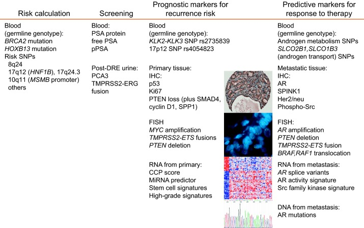 prostate cancer genetic markers
