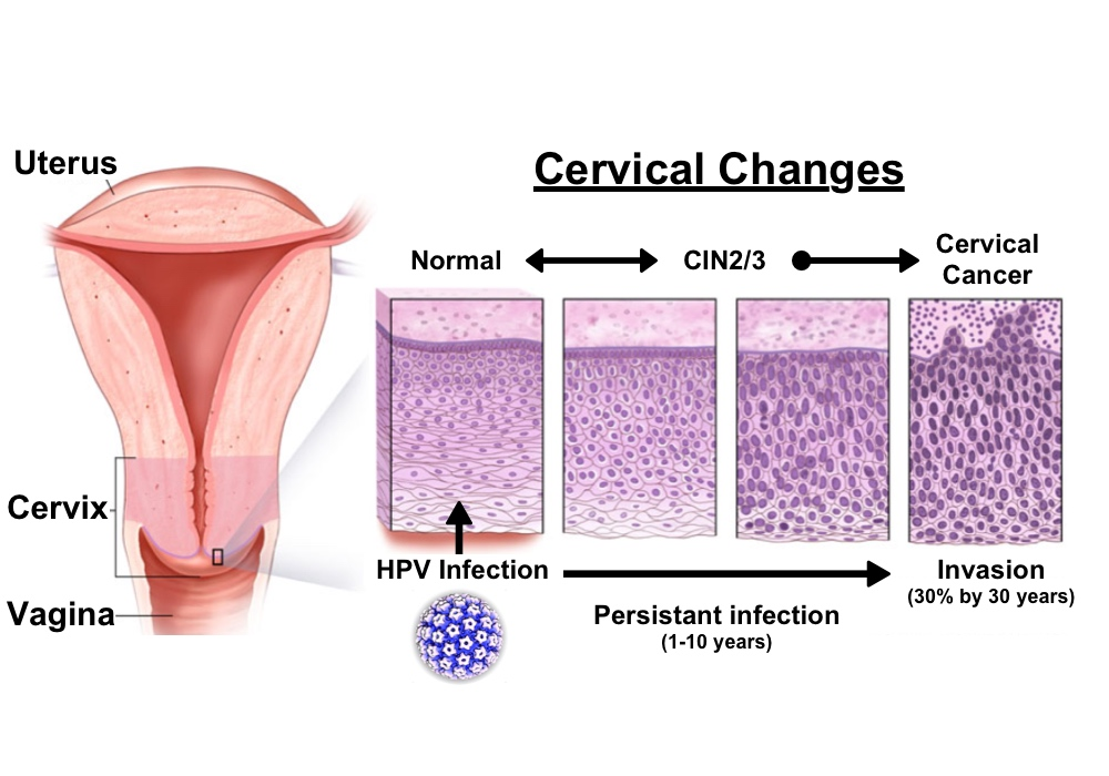endometrial cancer from hpv)