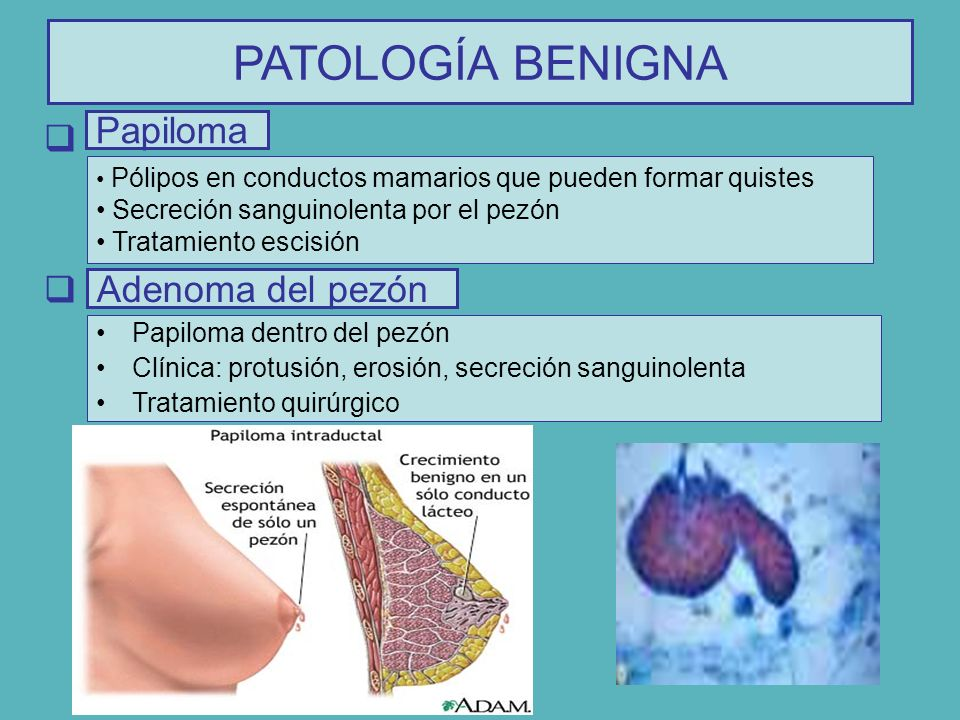 Papiloma intraductal de mama causas, Peritoneal cancer alternative treatment