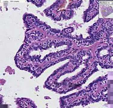Papillary thyroid cancer with lymph node metastasis. Endocrine Abstracts