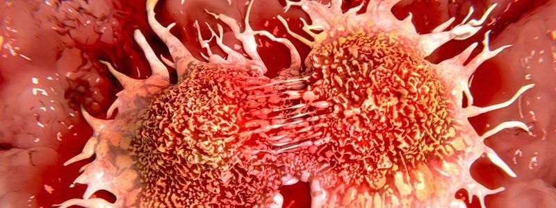 Natural treatment for hpv throat cancer - Better than 1/2 price