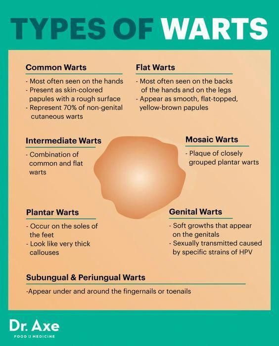 Hpv type hand warts, Old and new therapies for cutaneous and anogenital warts