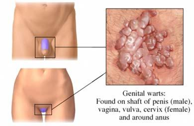 hhh   Cervical Cancer   Oral Sex Genital human papillomavirus (hpv) infection is best defined as a