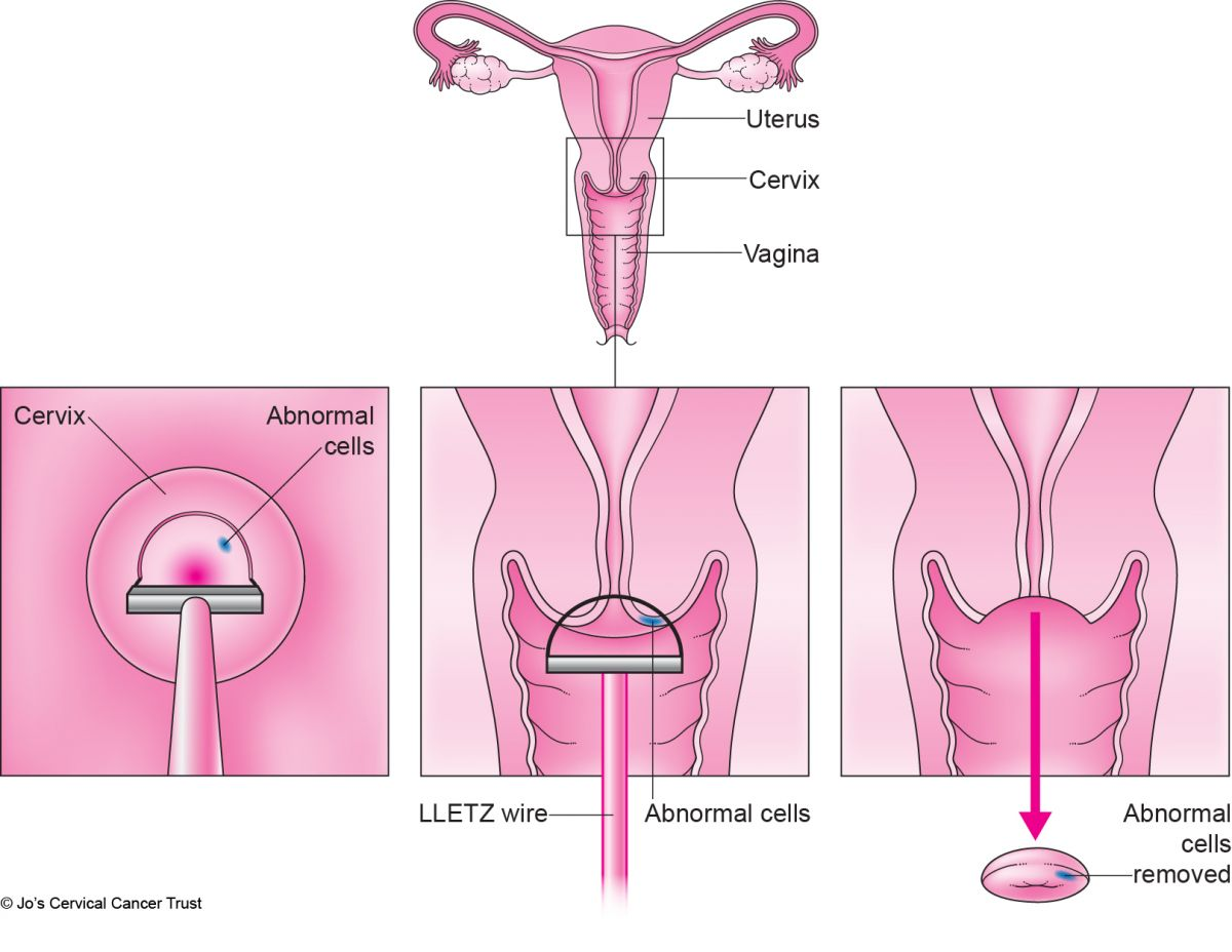 Hpv causes abnormal cells. Traducere