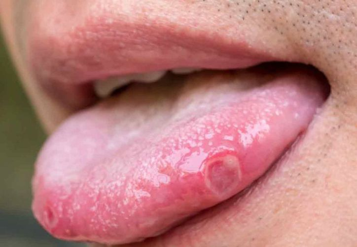 human papilloma in mouth)