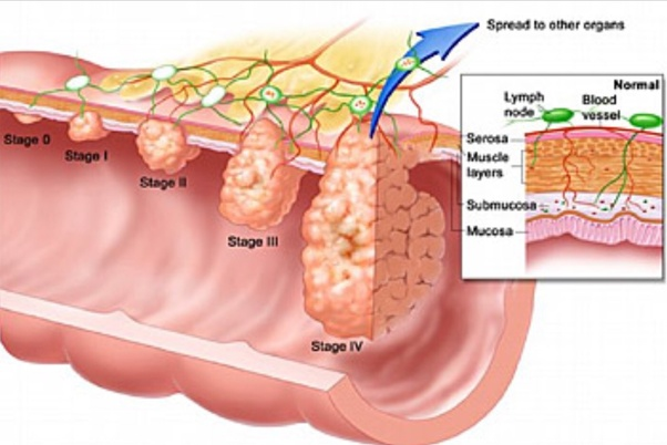 rectal cancer of the liver)