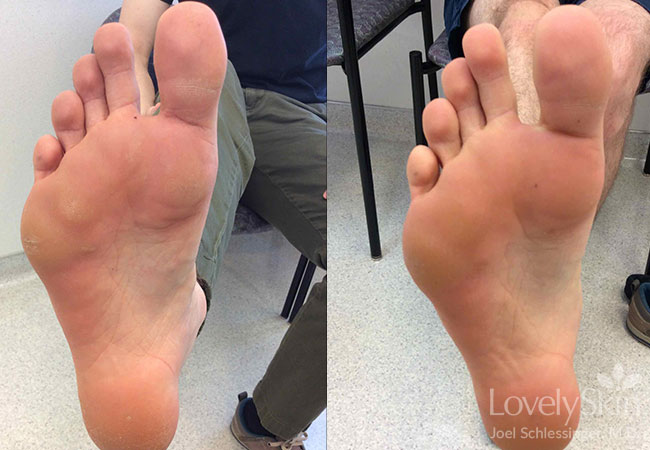 wart on foot how to remove)