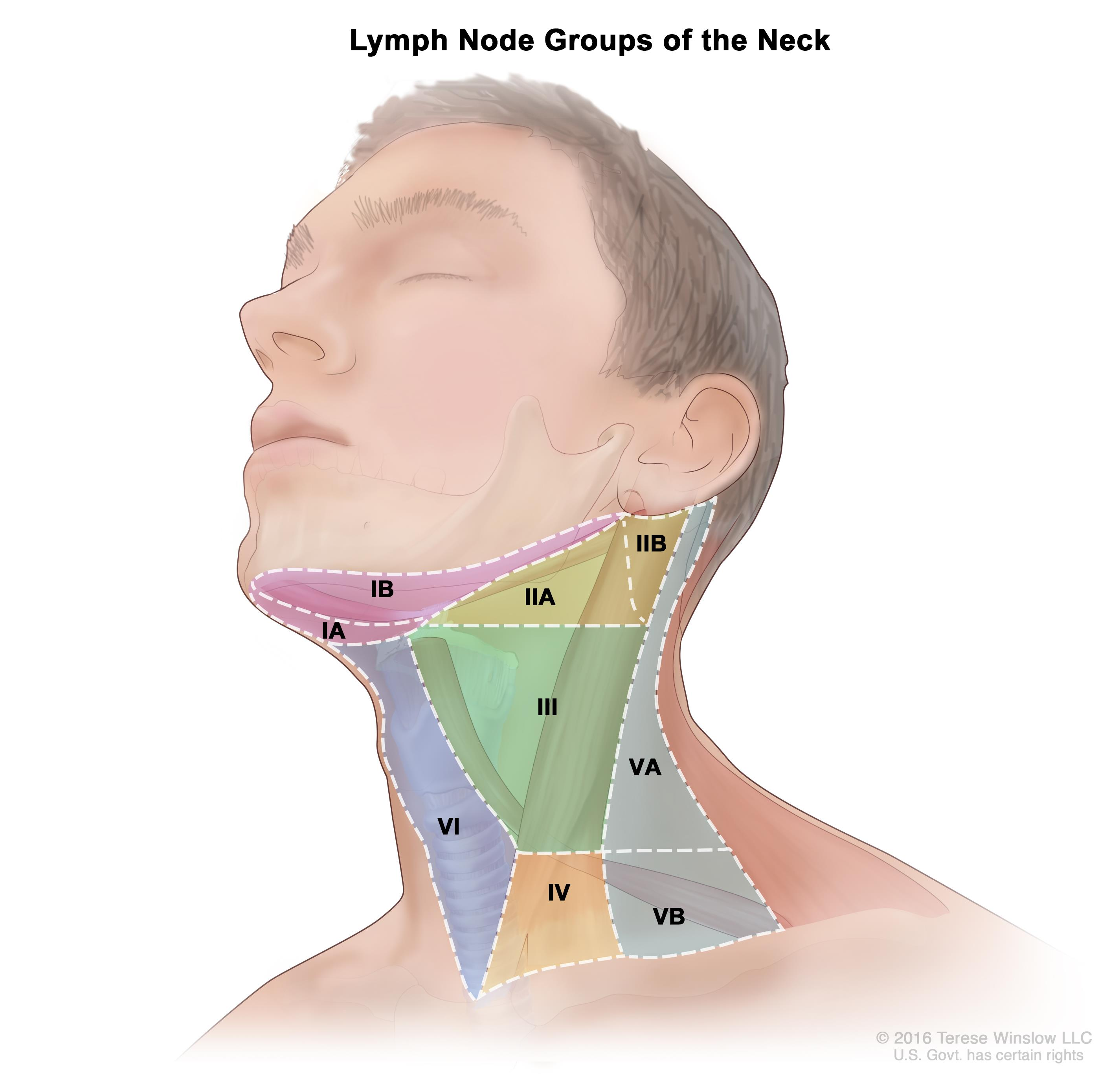 metastatic cancer neck lymph nodes