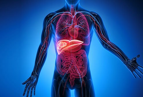 Hepatic cancer treatment options, Hepatocellular Carcinoma: Targeted Therapy - parohiaorsova.ro
