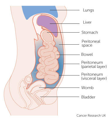 cancer the abdominal wall