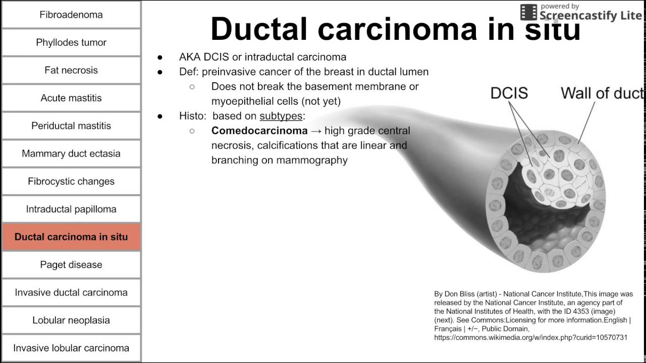 is ductal papilloma cancer