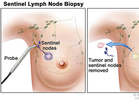 aggressive cancer in lymph nodes