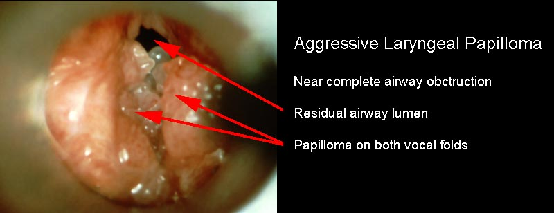 Prevention of laryngeal papilloma, hhh | Cervical Cancer | Oral Sex