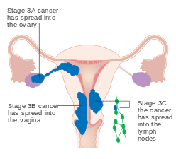 cancer of endometrial lining