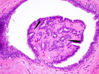 Intraductal papilloma ductal hyperplasia. REVIEW-URI