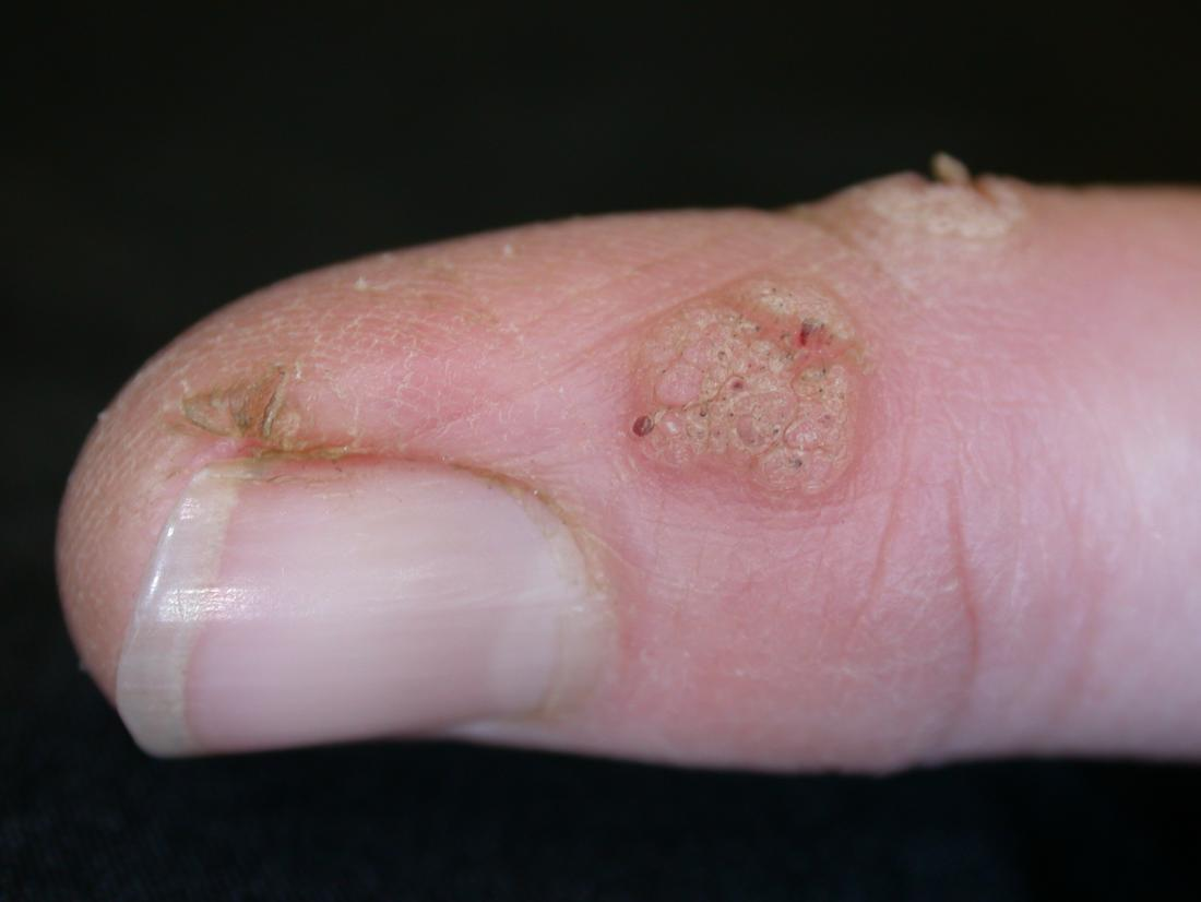 warts on hands stress