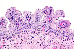 what is bladder papilloma
