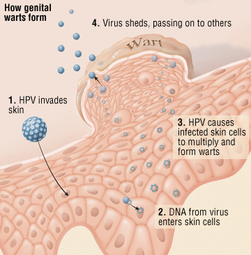 hpv wart and cancer