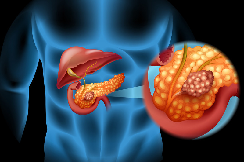[Cephalic duodenopancreatectomy with pyloric preservation in the treatment of pancreatic cancer].