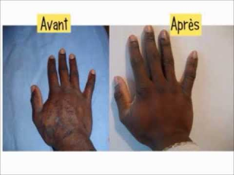 hpv homme symptome