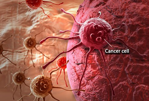 can hpv virus cause endometrial cancer)