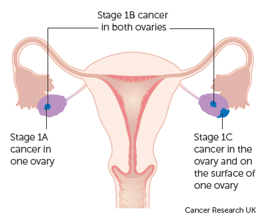 ovarian cancer how fast does it grow)