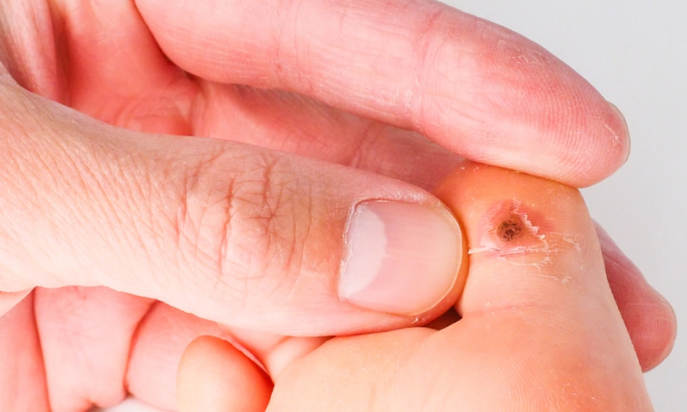 warts on hands in toddlers)