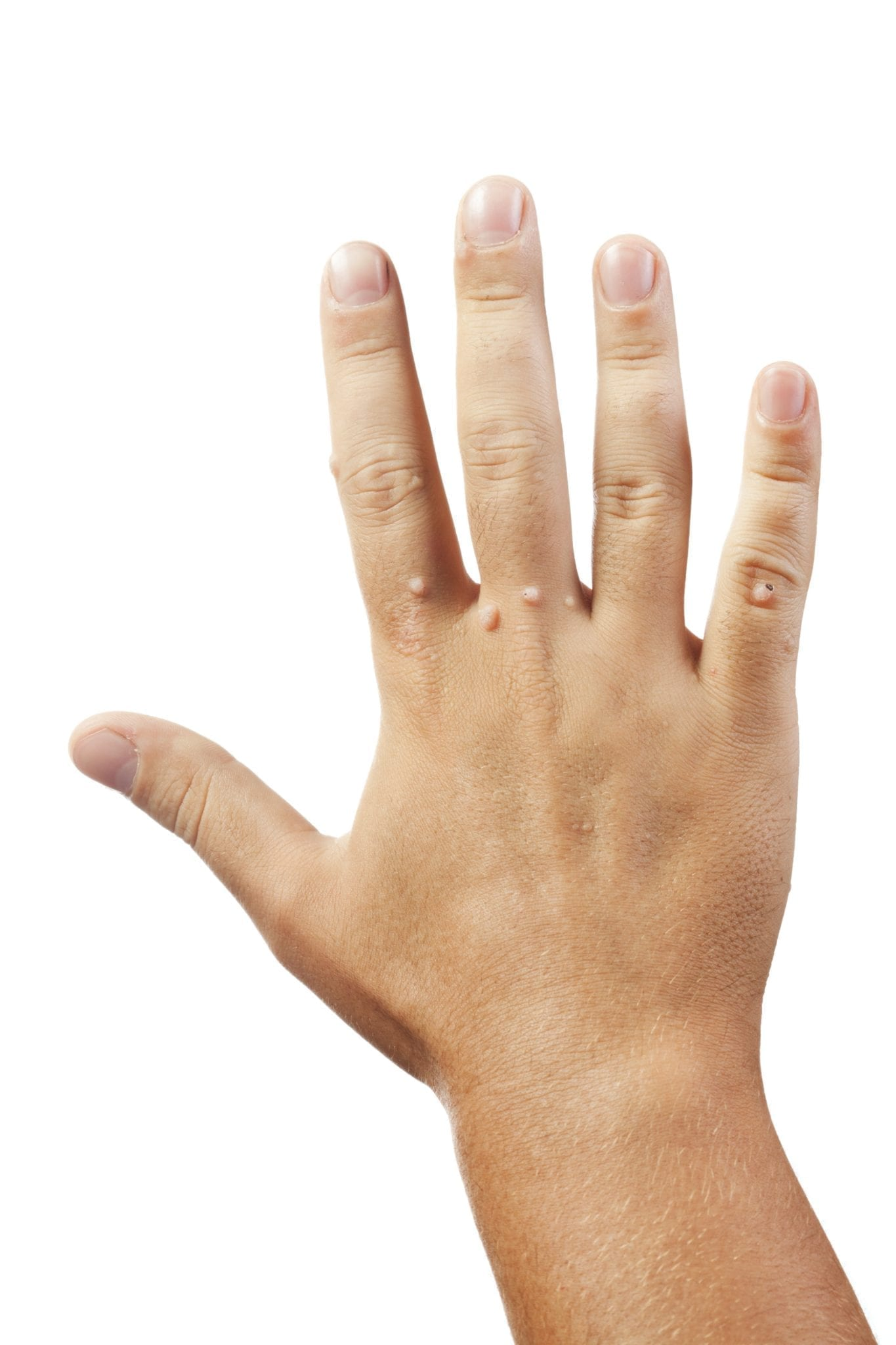 warts on hands and wrist