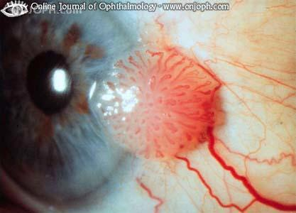 conjunctival papilloma icd 10
