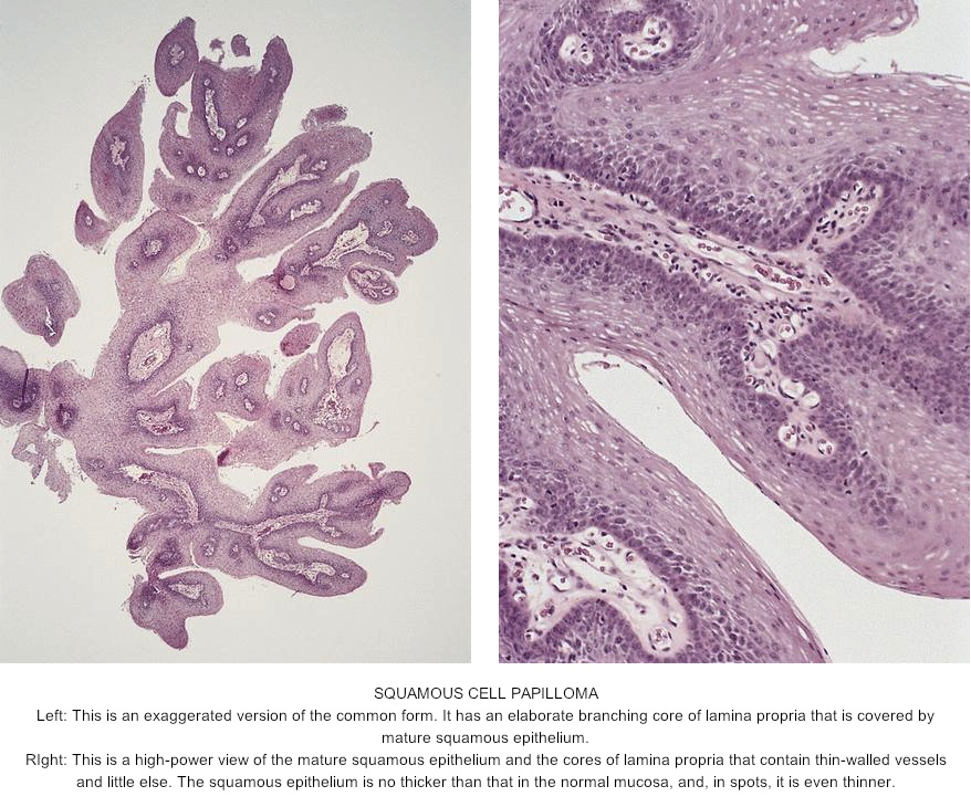 cell papilloma of skin