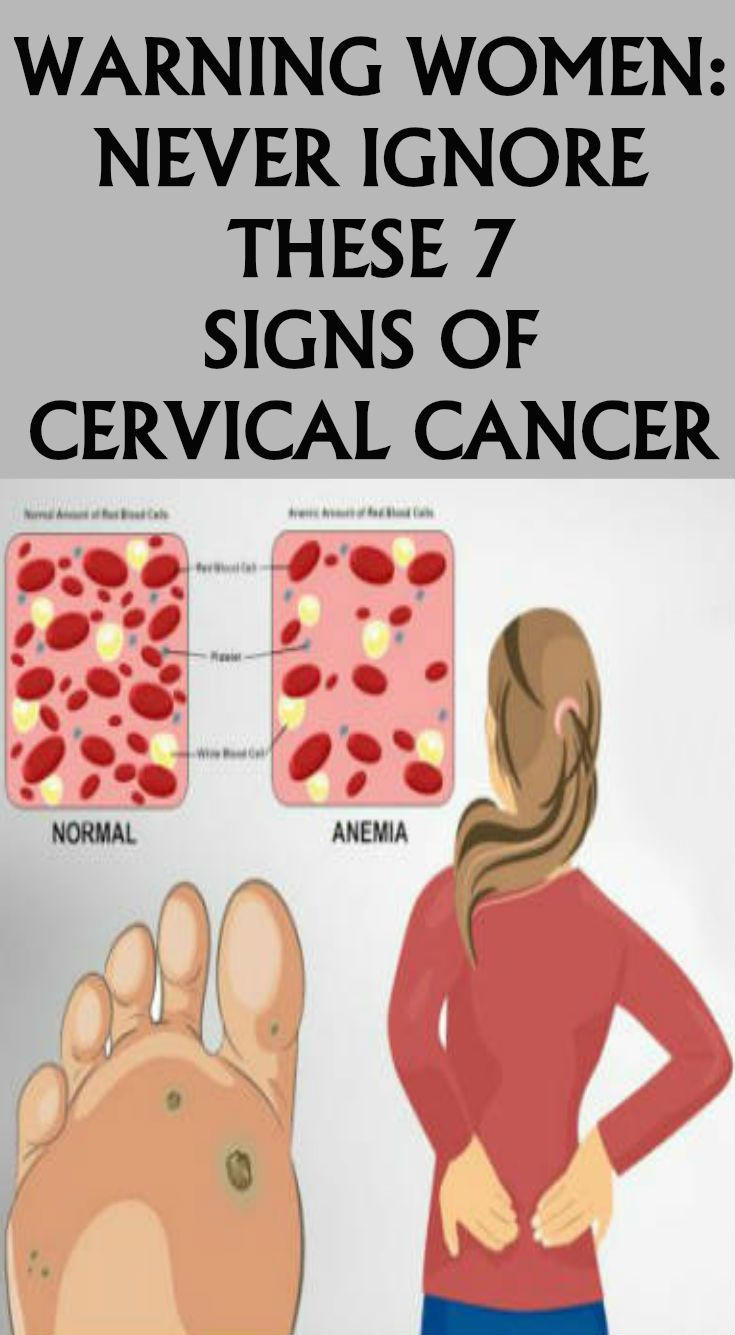 Hpv virus and ovarian cancer - Hpv uomo e analisi del sangue