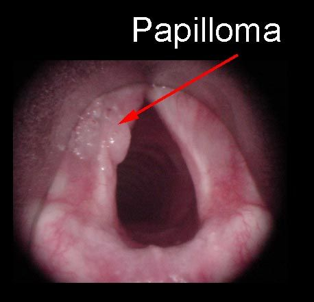 Squamous cell papilloma of larynx