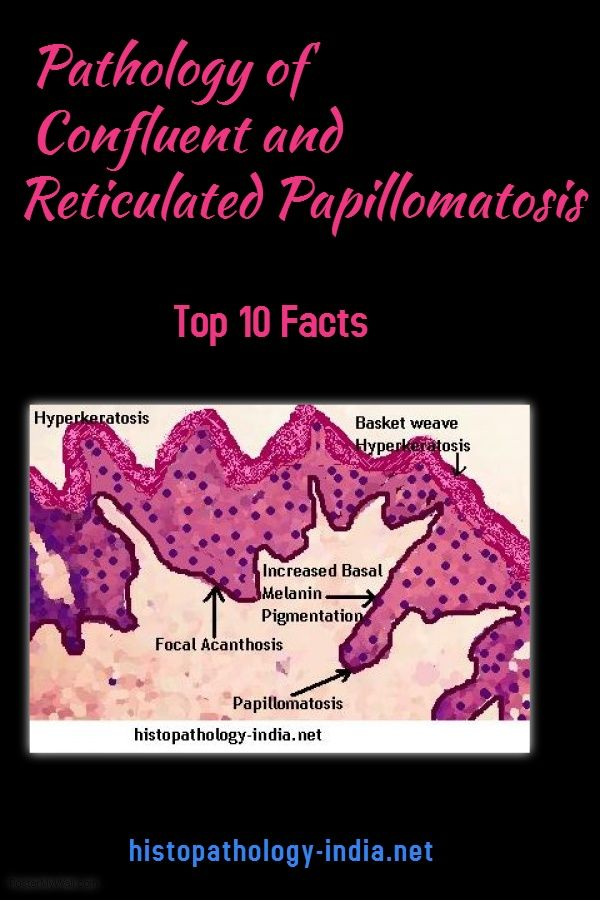 confluent and reticulated papillomatosis histology)