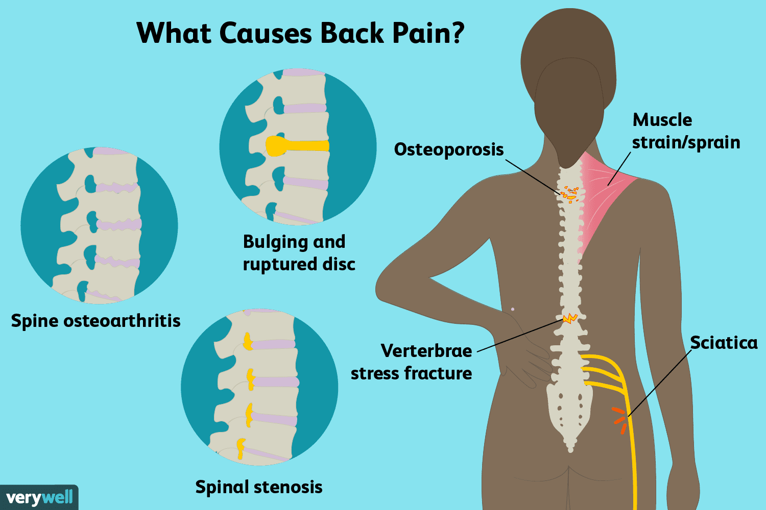 abdominal cancer back pain