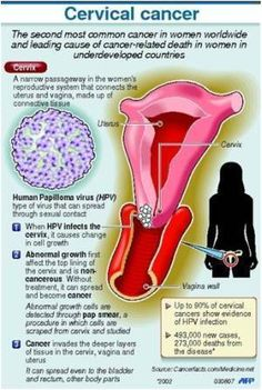 human papillomavirus and ovarian cancer)