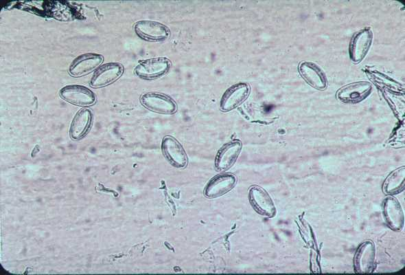 enterobius vermicularis oua warts on hands uk