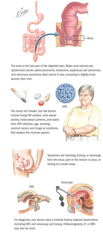 can hpv cause bowel cancer
