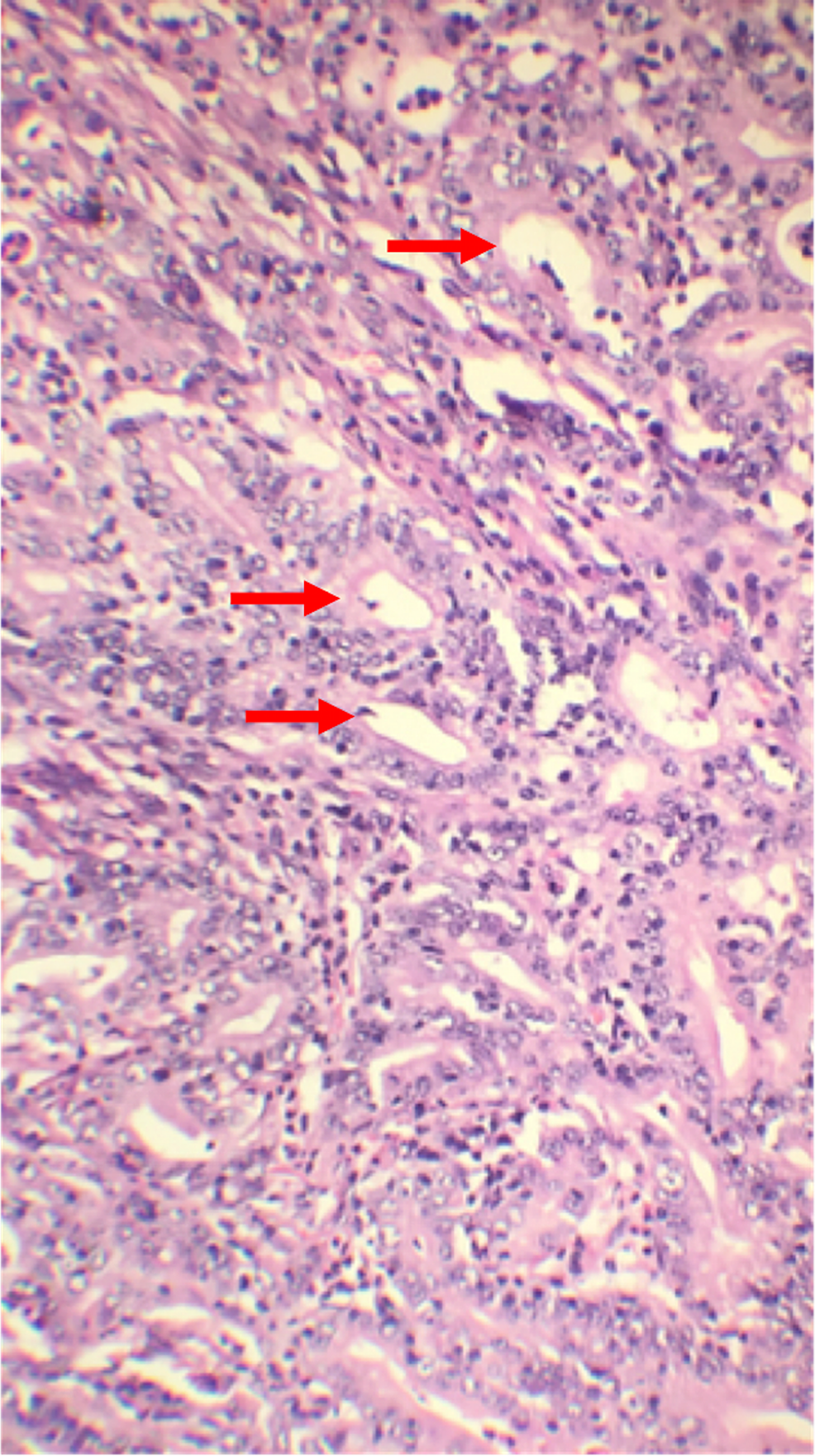 gastric cancer ucsf