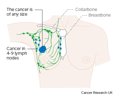 Bone Cancer, Primary Bone Cancers and Bone Metastases, Metastatic cancer and pain