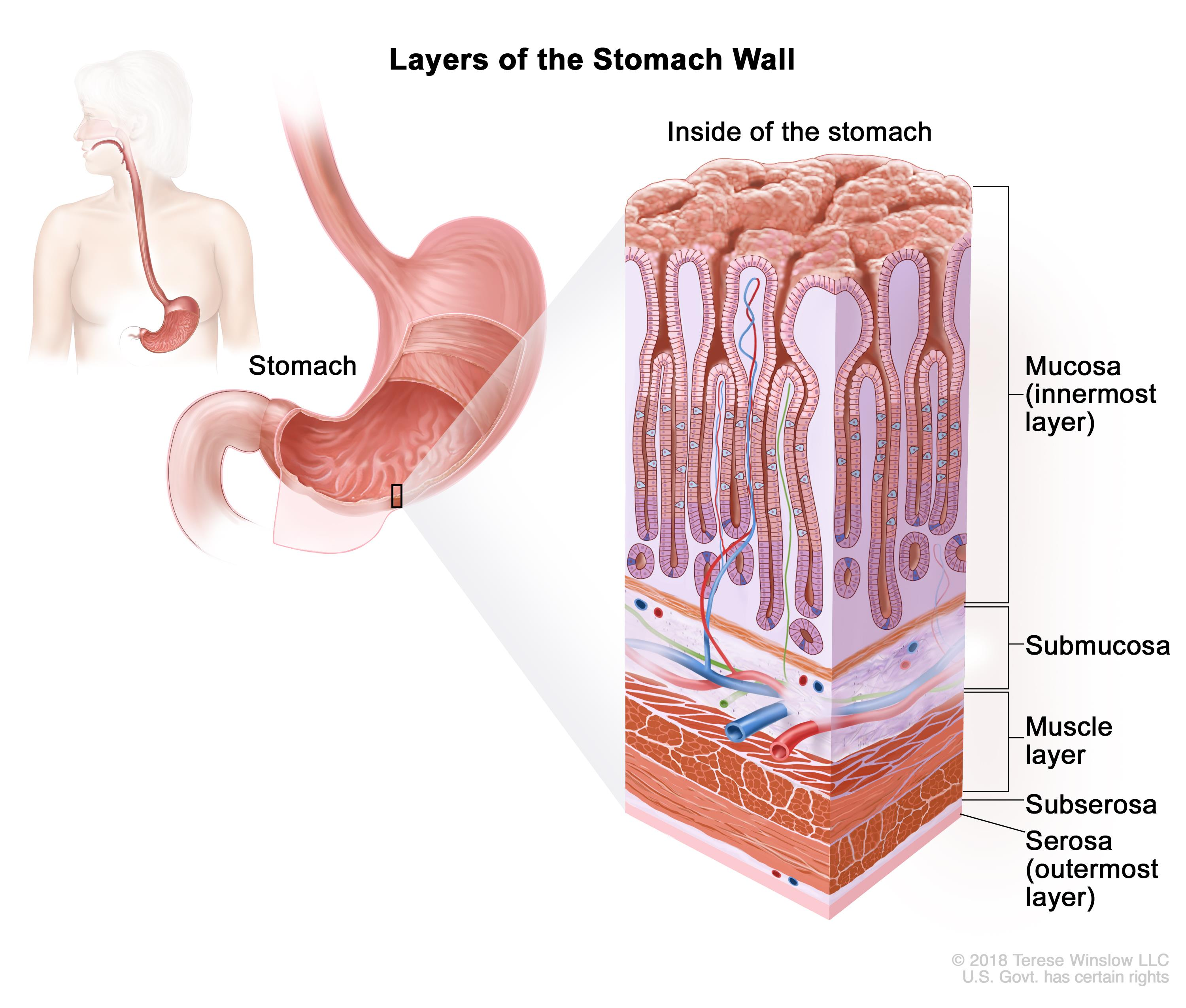 Gastric cancer early diagnosis, [The primitive gastric non- Hodgkin lymphoma].