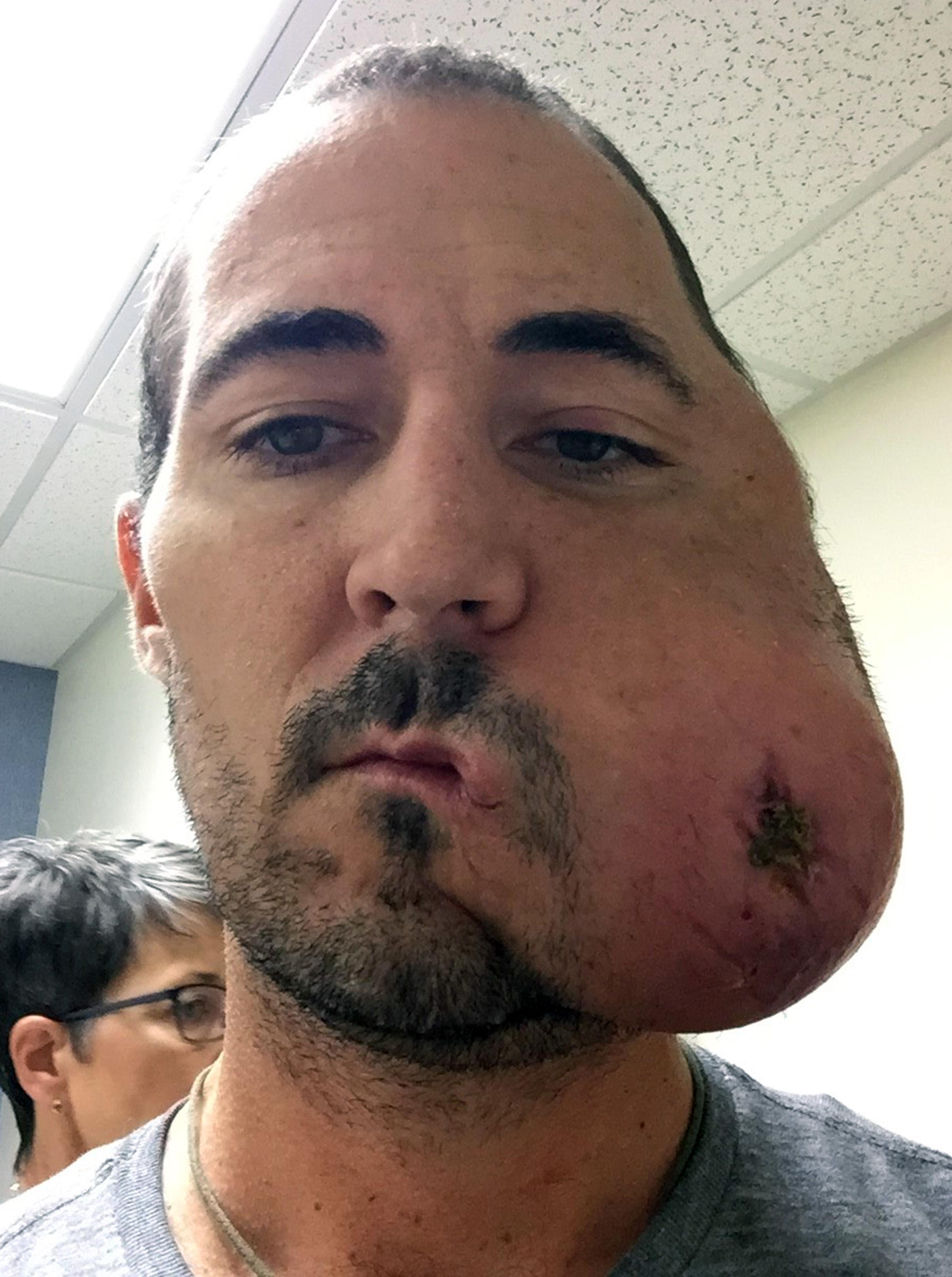 aggressive cancer of the face
