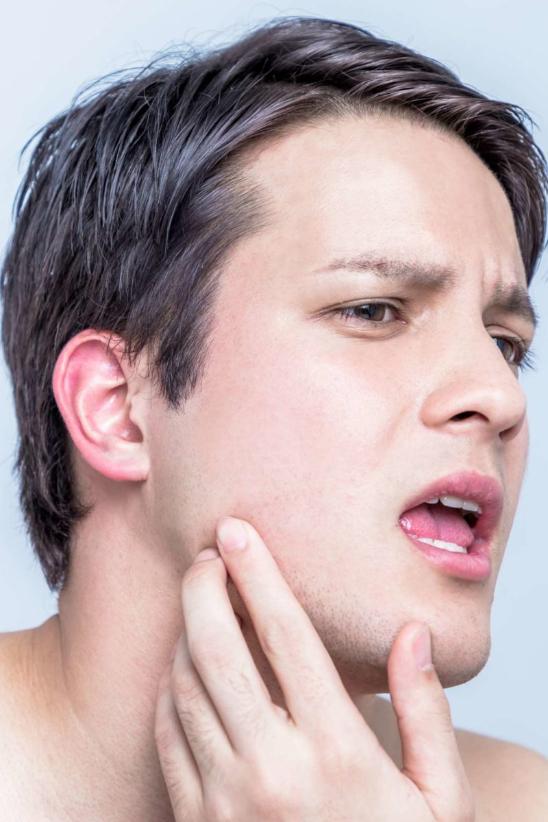 hpv on face treatment