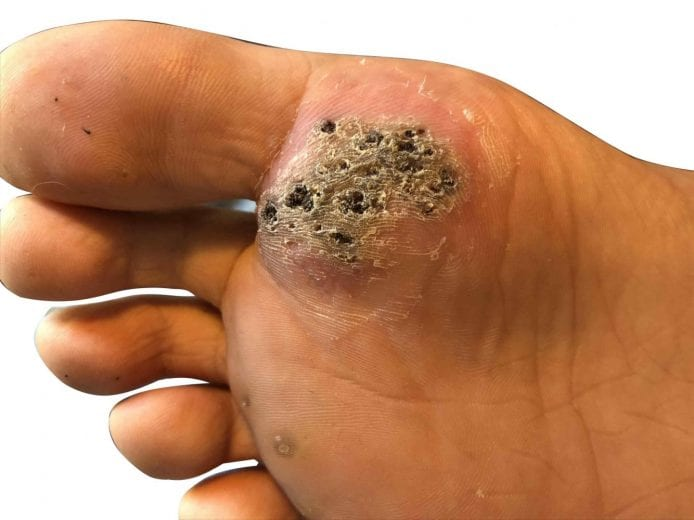Wart on foot with black spots